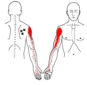 Trigger Point Therapy Burnaby Physio
