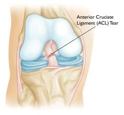 ACL Burnaby Physio